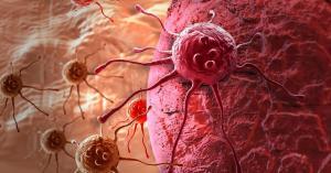 Рак яичников, простаты и молочной железы: как они передаются по наследству